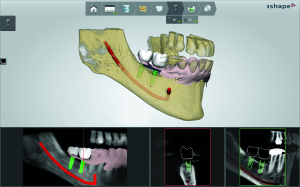 3Shape Implant planning