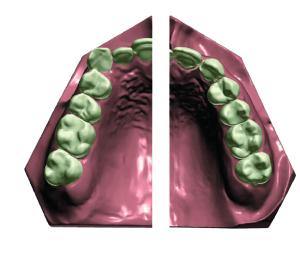3Shape Orthosystems  - vorher und nachher